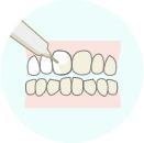 歯の表面にジェルを塗布