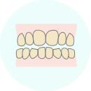 治療前の歯の色をチェック