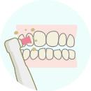 歯のクリーニングと自宅での使用法説明