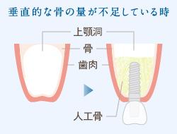 サイナスリフト法(上顎洞挙上術)